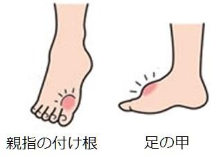 足の甲の痛み 原因 痛風