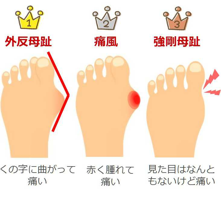 足 の 親指 の 先 が 痛い